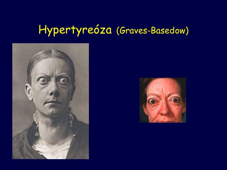 Hypertyreóza (Graves-Basedow)