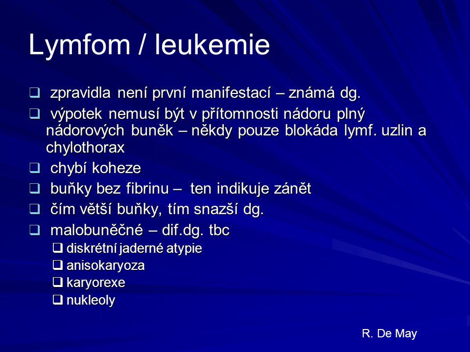 Lymfom / leukemie  zpravidla není první manifestací – známá dg.  výpotek nemusí být v přítomnosti nádoru plný nádorových buněk – někdy pouze blokáda