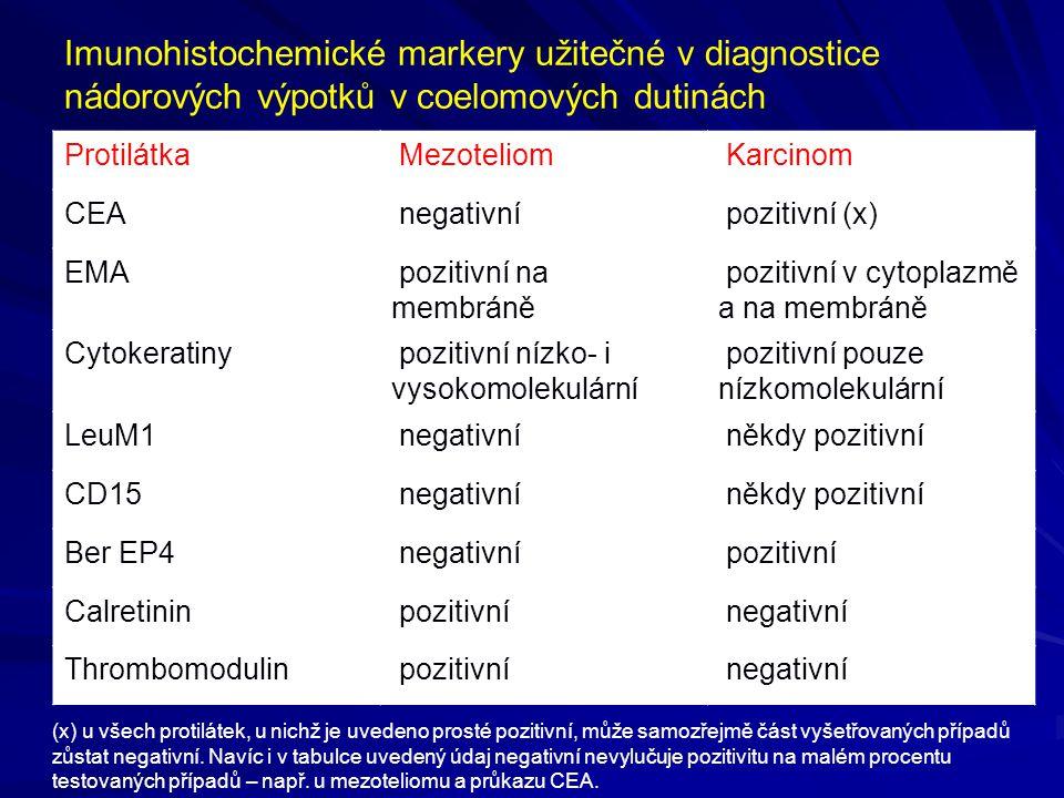 Imunohistochemické markery užitečné v diagnostice nádorových výpotků v coelomových dutinách Protilátka Mezoteliom Karcinom CEA negativní pozitivní (x)