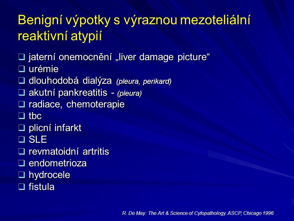 """Benigní výpotky s výraznou mezoteliální reaktivní atypií  jaterní onemocnění """"liver damage picture""""  urémie  dlouhodobá dialýza (pleura, perikard)"""