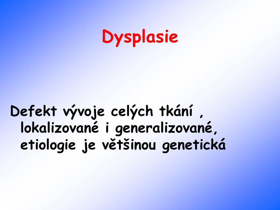 Dysplasie Defekt vývoje celých tkání, lokalizované i generalizované, etiologie je většinou genetická