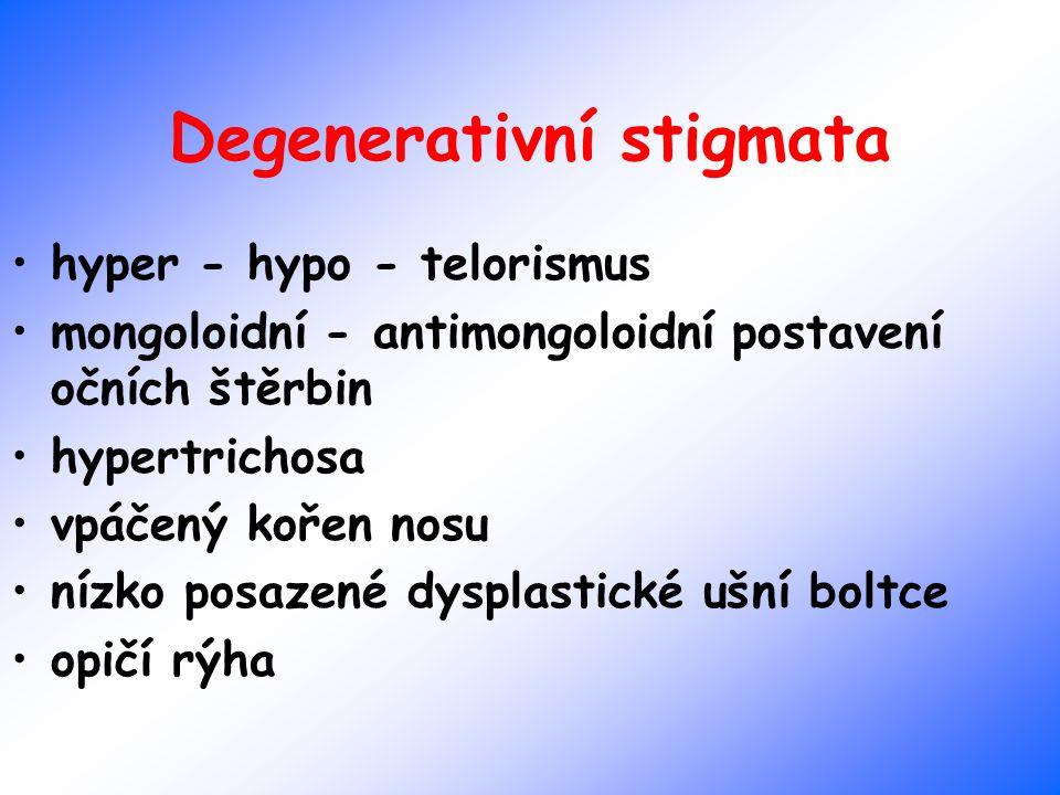 Degenerativní stigmata hyper - hypo - telorismus mongoloidní - antimongoloidní postavení očních štěrbin hypertrichosa vpáčený kořen nosu nízko posazen