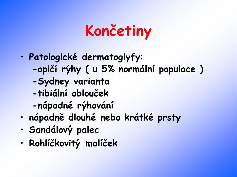 Končetiny Patologické dermatoglyfy: -opičí rýhy ( u 5% normální populace ) -Sydney varianta -tibiální oblouček -nápadné rýhování nápadně dlouhé nebo k