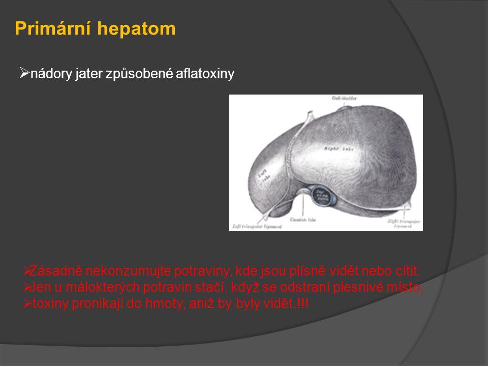 Primární hepatom  nádory jater způsobené aflatoxiny  Zásadně nekonzumujte potraviny, kde jsou plísně vidět nebo cítit.  Jen u málokterých potravin