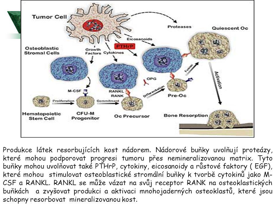 Produkce látek resorbujících kost nádorem.