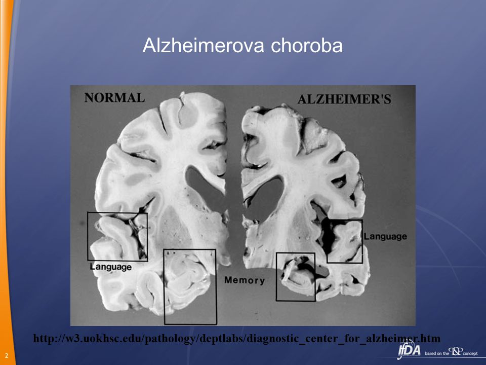 2 Alzheimerova choroba http://w3.uokhsc.edu/pathology/deptlabs/diagnostic_center_for_alzheimer.htm
