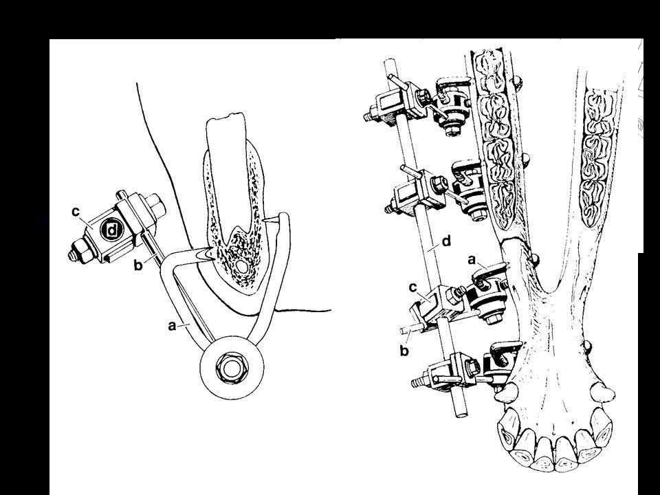 Zevní fixace Zevní fixátor Transfixační kast Bezhřebový fixátor