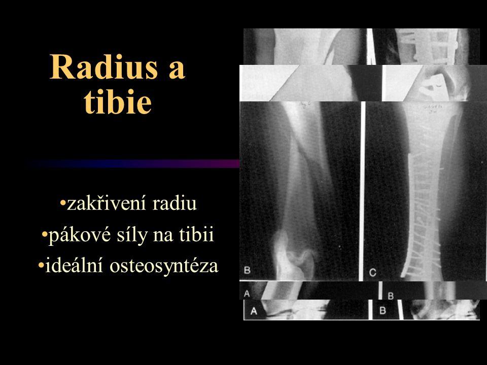 Radius a tibie zakřivení radiu pákové síly na tibii ideální osteosyntéza