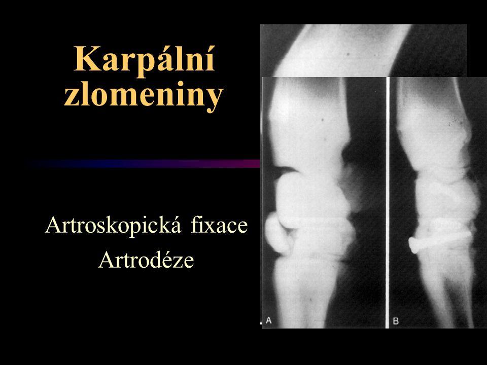 Karpální zlomeniny Artroskopická fixace Artrodéze