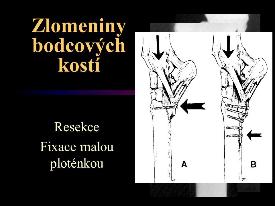 Zlomeniny bodcových kostí Resekce Fixace malou ploténkou