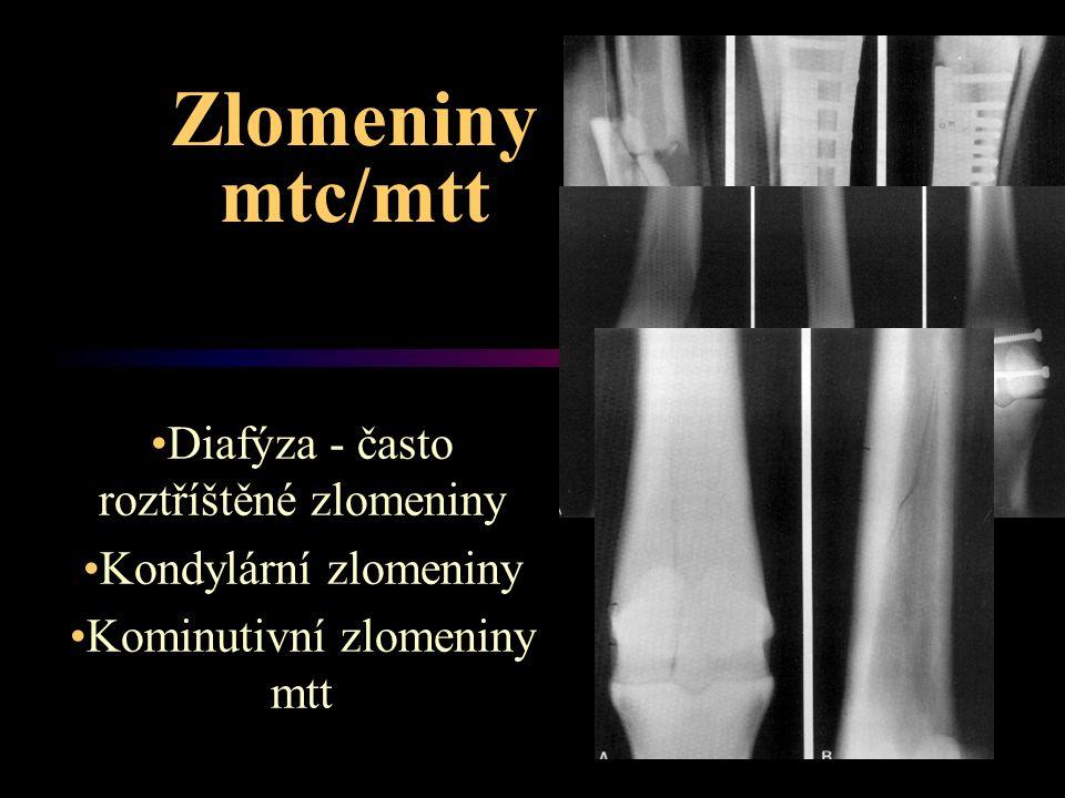 Zlomeniny mtc/mtt Diafýza - často roztříštěné zlomeniny Kondylární zlomeniny Kominutivní zlomeniny mtt
