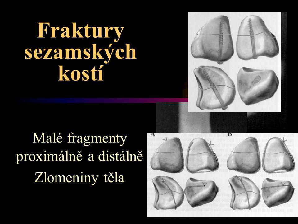 Fraktury sezamských kostí Malé fragmenty proximálně a distálně Zlomeniny těla