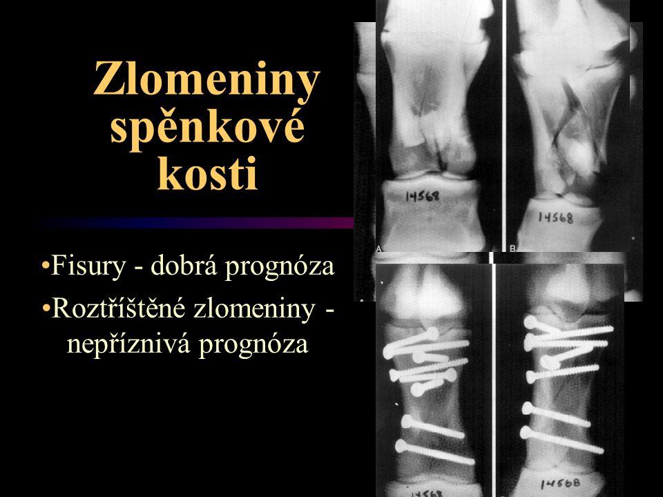 Zlomeniny spěnkové kosti Fisury - dobrá prognóza Roztříštěné zlomeniny - nepříznivá prognóza
