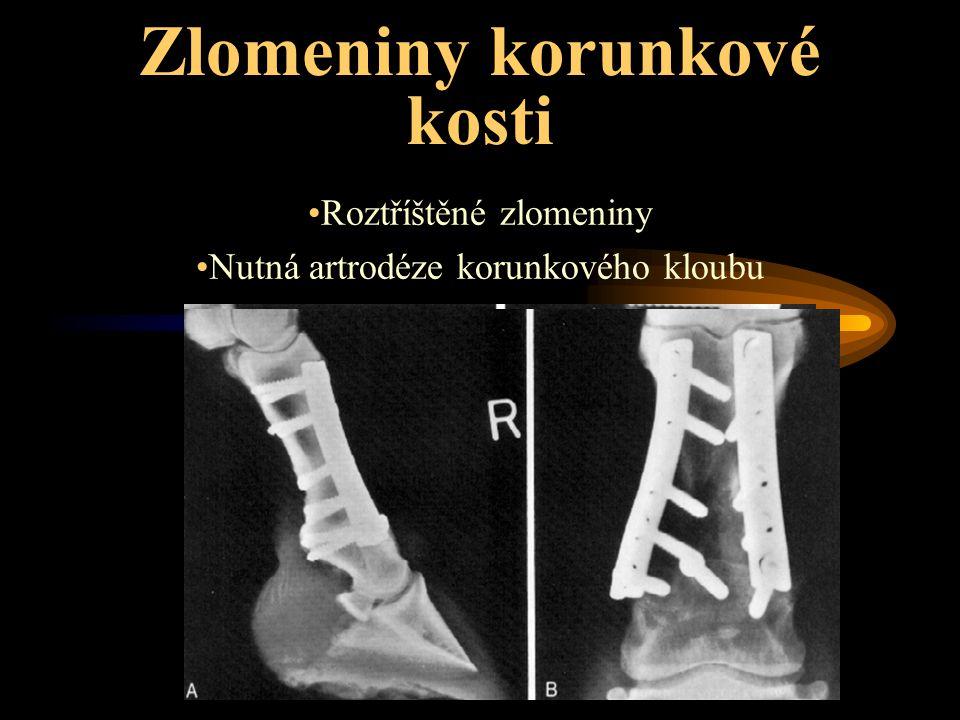 Zlomeniny korunkové kosti Roztříštěné zlomeniny Nutná artrodéze korunkového kloubu