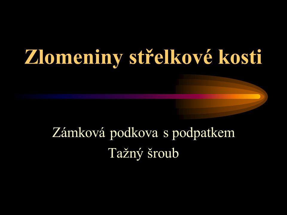 Zlomeniny střelkové kosti Zámková podkova s podpatkem Tažný šroub