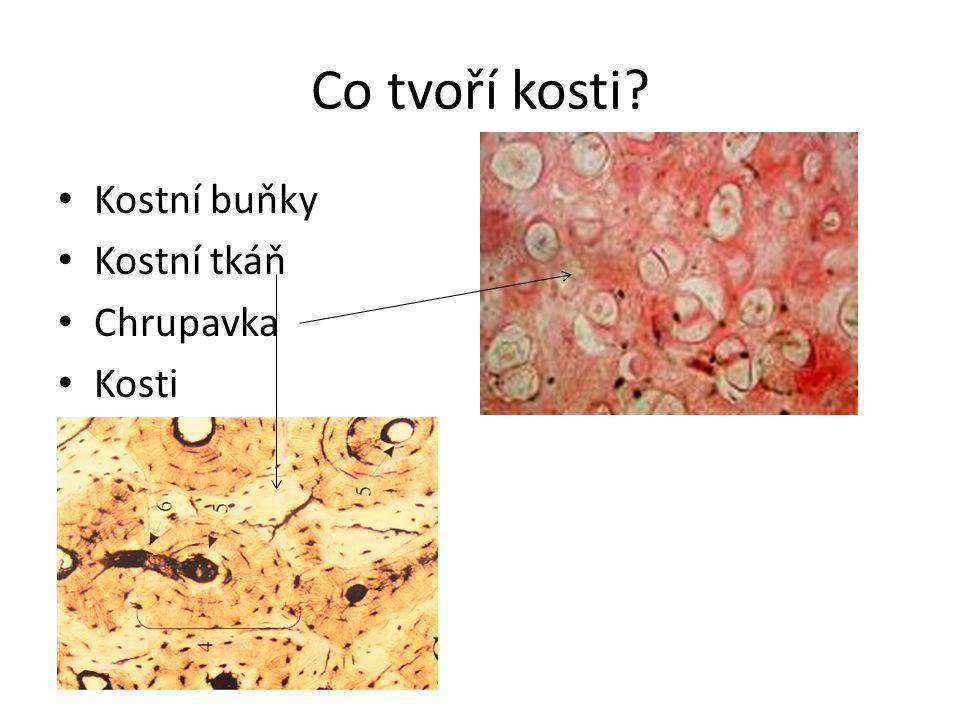 Co tvoří kosti? Kostní buňky Kostní tkáň Chrupavka Kosti