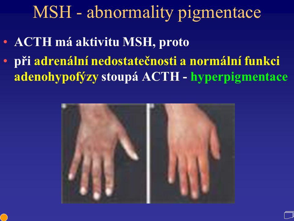 MSH - abnormality pigmentace ACTH má aktivitu MSH, proto při adrenální nedostatečnosti a normální funkci adenohypofýzy stoupá ACTH - hyperpigmentace