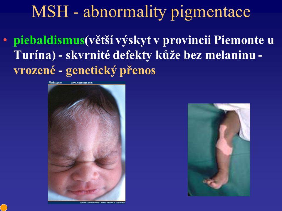 MSH - abnormality pigmentace piebaldismus(větší výskyt v provincii Piemonte u Turína) - skvrnité defekty kůže bez melaninu - vrozené - genetický přeno