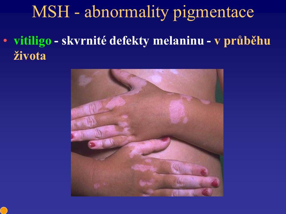 MSH - abnormality pigmentace vitiligo - skvrnité defekty melaninu - v průběhu života