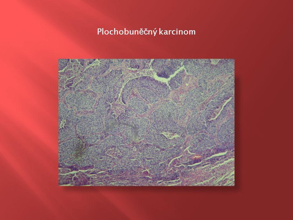  s tvorbou hlenu nebo bez  vychází z epitelu bronchiálních žláz, alveolární výstelky a z Clarových buněk  někdy se šíří po povrchu alveolů = bronchioloalveolární karcinom