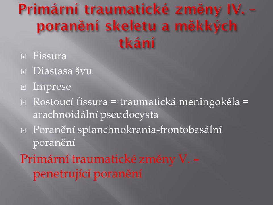  Fissura  Diastasa švu  Imprese  Rostoucí fissura = traumatická meningokéla = arachnoidální pseudocysta  Poranění splanchnokrania-frontobasální poranění Primární traumatické změny V.