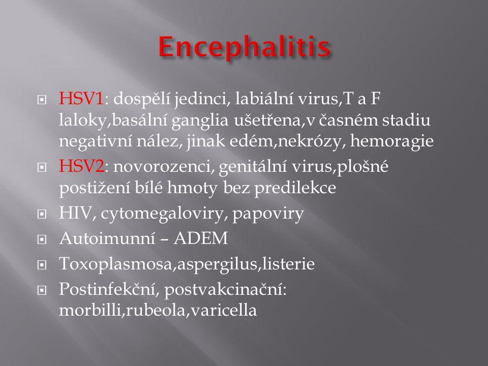  HSV1: dospělí jedinci, labiální virus,T a F laloky,basální ganglia ušetřena,v časném stadiu negativní nález, jinak edém,nekrózy, hemoragie  HSV2: novorozenci, genitální virus,plošné postižení bílé hmoty bez predilekce  HIV, cytomegaloviry, papoviry  Autoimunní – ADEM  Toxoplasmosa,aspergilus,listerie  Postinfekční, postvakcinační: morbilli,rubeola,varicella