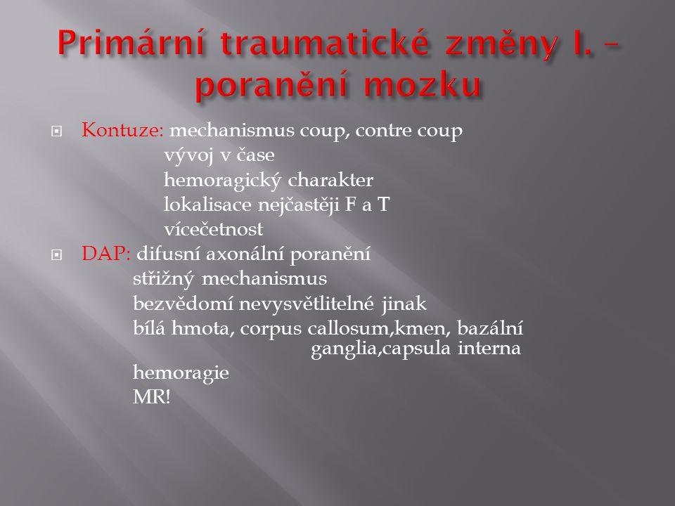 I.Poruchy dorzální dukce: 3-5.týden Chiari I až III II.Poruchy ventrální dukce: 5.-10.týden Dandy-Walker III.Poruchy buněčné migrace a gyrifikace: 2.-5.