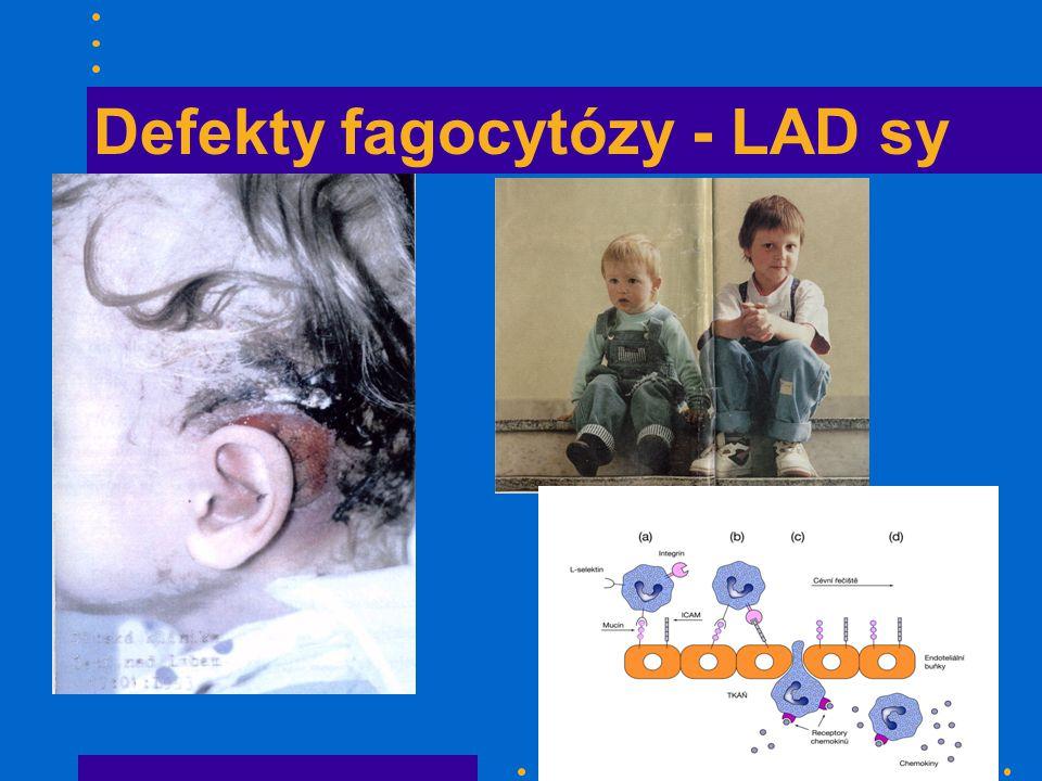 Defekty fagocytózy - LAD sy