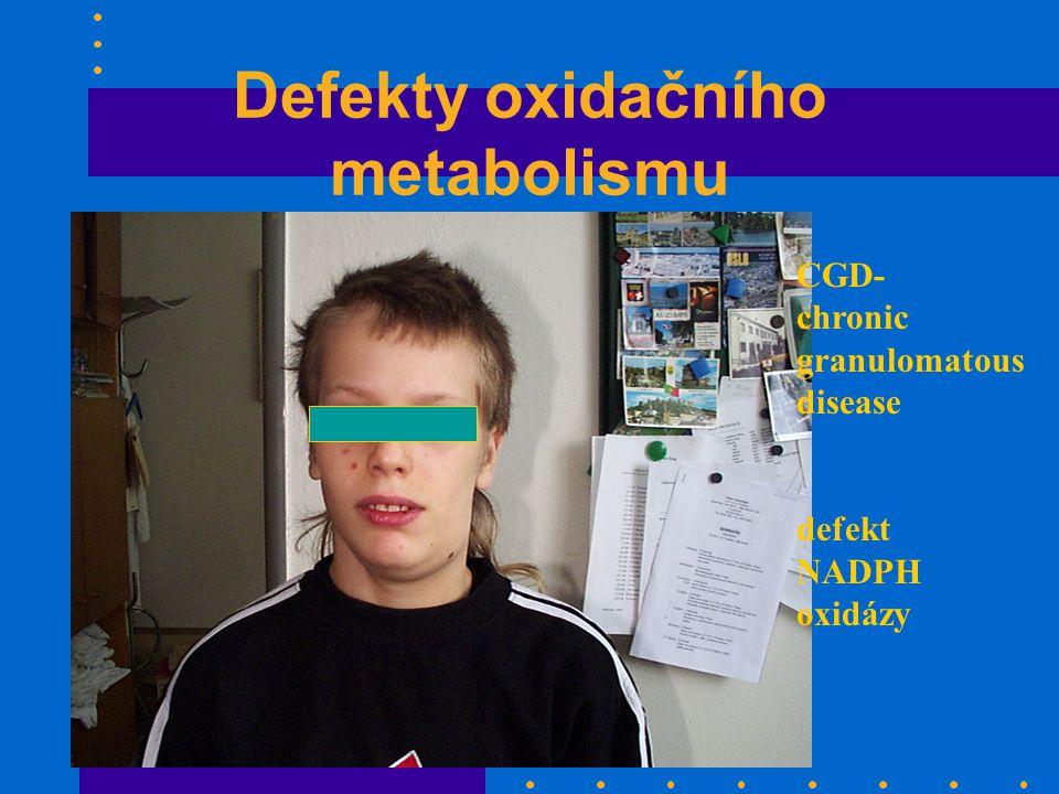 Defekty oxidačního metabolismu CGD- chronic granulomatous disease defekt NADPH oxidázy