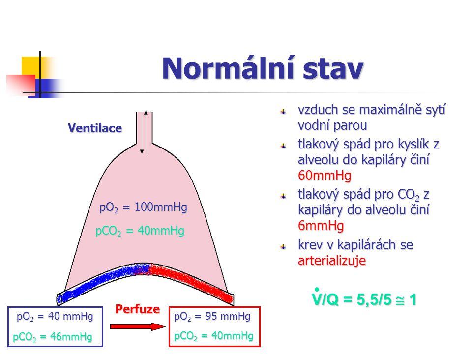 Normální stav vzduch se maximálně sytí vodní parou tlakový spád pro kyslík z alveolu do kapiláry činí 60mmHg tlakový spád pro CO 2 z kapiláry do alveolu činí 6mmHg krev v kapilárách se arterializuje Ventilace pO 2 = 100mmHg pO 2 = 40 mmHg pO 2 = 95 mmHg Perfuze pCO 2 = 40mmHg pCO 2 = 46mmHg pCO 2 = 40mmHg V/Q = 5,5/5  1