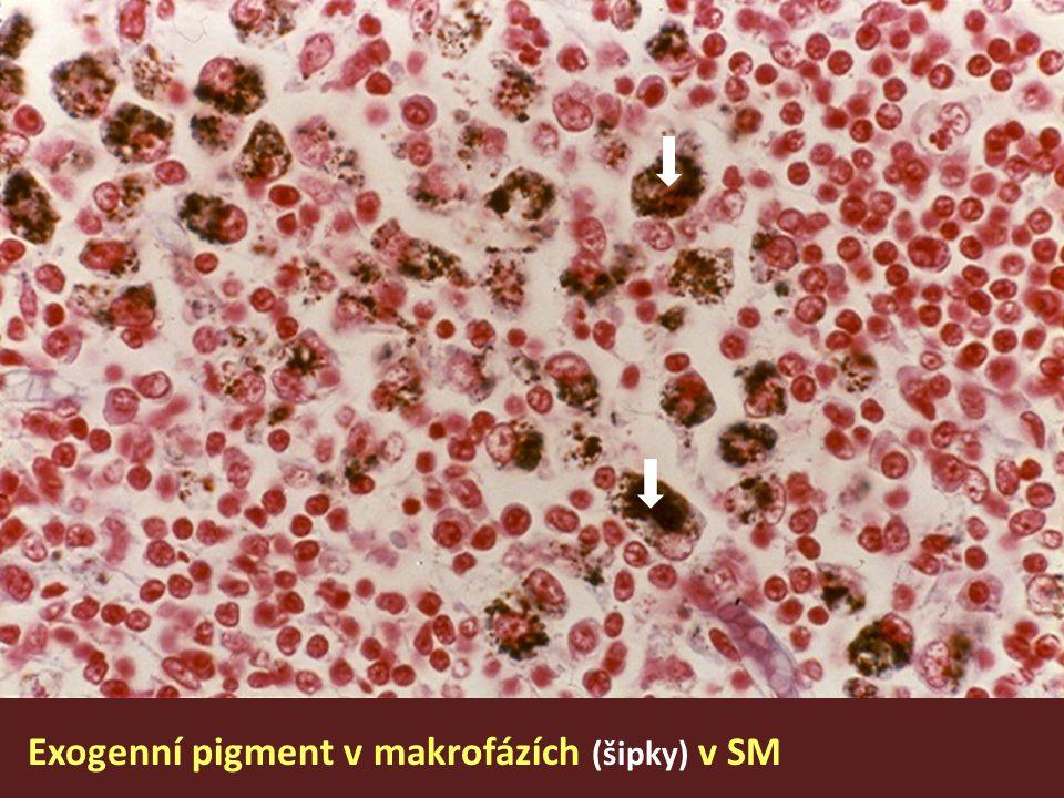 Exogenní pigment v makrofázích (šipky) v SM