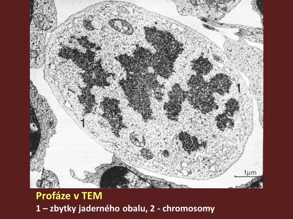 Profáze v TEM 1 – zbytky jaderného obalu, 2 - chromosomy