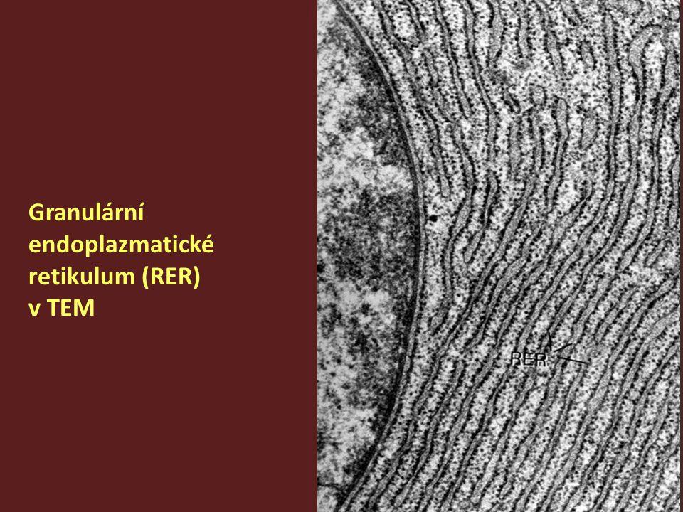 Golgiho komplex (šipka) v SM