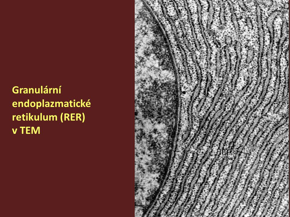Granulární endoplazmatické retikulum (RER) v TEM