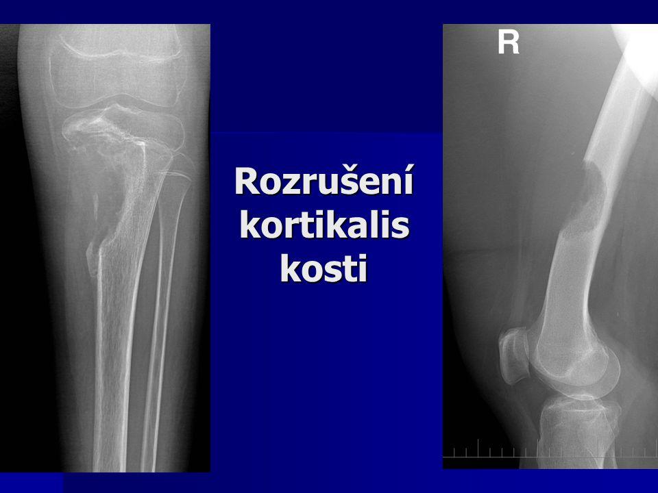 Rozrušení kortikalis kosti