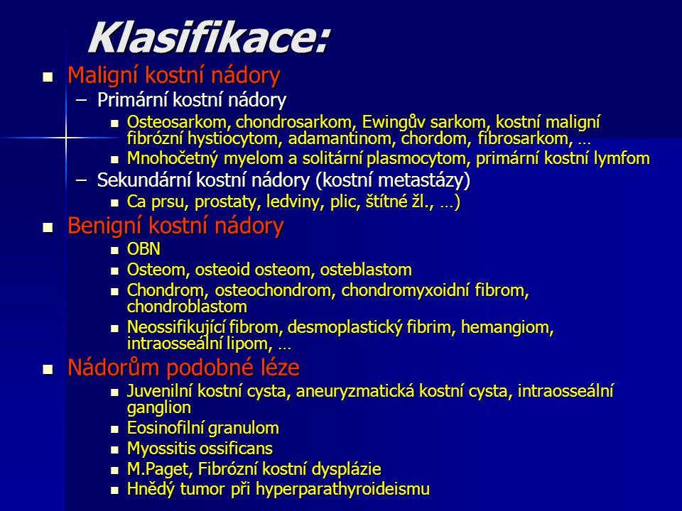 Klasifikace: Maligní kostní nádory Maligní kostní nádory –Primární kostní nádory Osteosarkom, chondrosarkom, Ewingův sarkom, kostní maligní fibrózní h