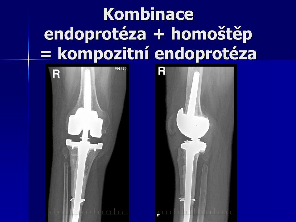 Kombinace endoprotéza + homoštěp = kompozitní endoprotéza