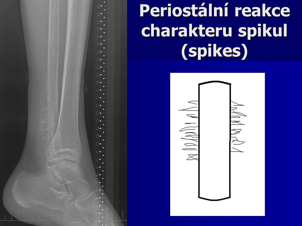 Periostální reakce charakteru spikul (spikes)