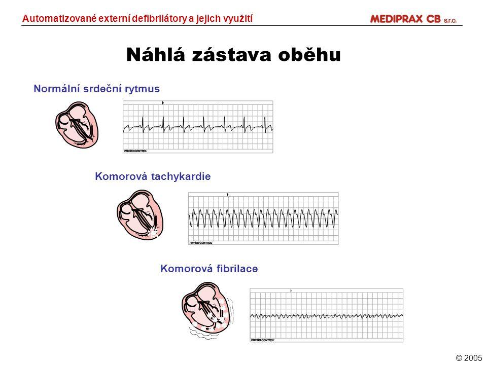 Náhlá zástava oběhu Automatizované externí defibrilátory a jejich využití Normální srdeční rytmus Komorová tachykardie Komorová fibrilace © 2005