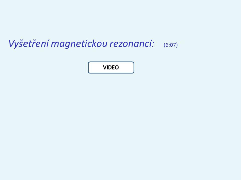 Vyšetření magnetickou rezonancí: (6:07)