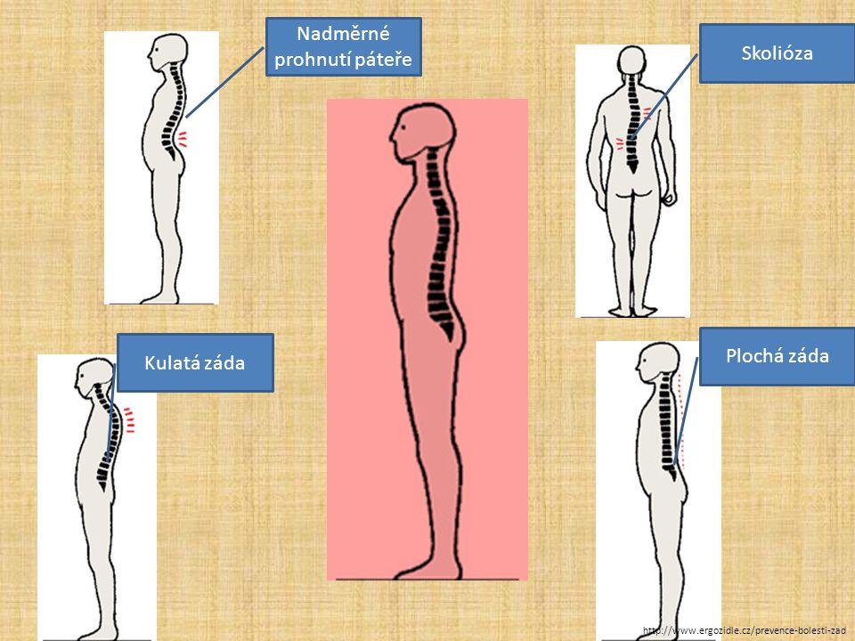 SKOLIÓZA  vybočení páteře do strany  nestejná výška ramen, sešikmená pánev vrozená jednostranná zátěž stoje http://www.ergozidle.cz/prevence-bolesti-zad