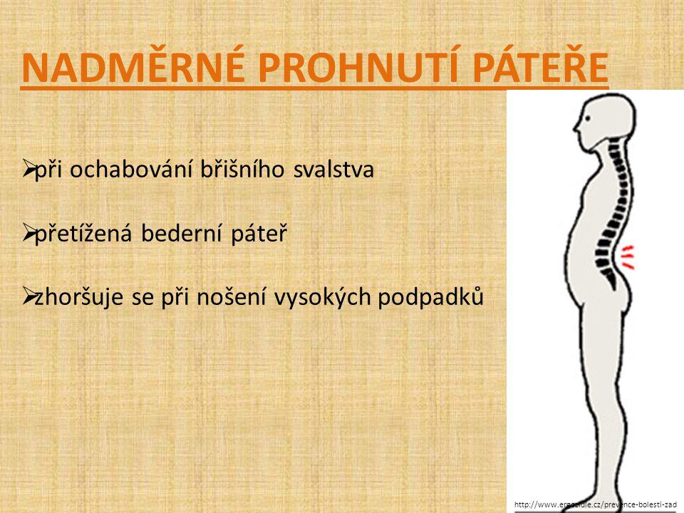 NADMĚRNÉ PROHNUTÍ PÁTEŘE  při ochabování břišního svalstva  přetížená bederní páteř  zhoršuje se při nošení vysokých podpadků http://www.ergozidle.cz/prevence-bolesti-zad