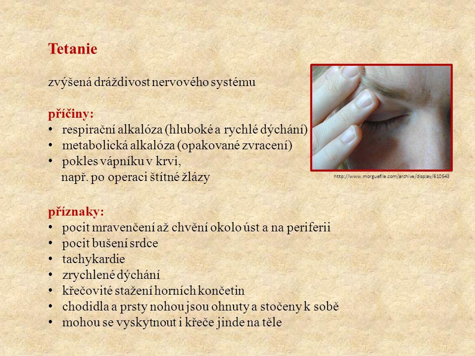 Tetanie zvýšená dráždivost nervového systému příčiny: respirační alkalóza (hluboké a rychlé dýchání) metabolická alkalóza (opakované zvracení) pokles vápníku v krvi, např.