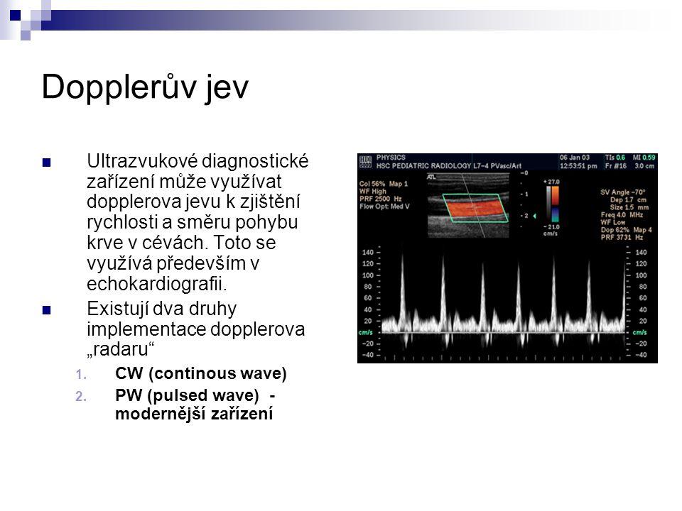 Dopplerův jev Ultrazvukové diagnostické zařízení může využívat dopplerova jevu k zjištění rychlosti a směru pohybu krve v cévách. Toto se využívá před