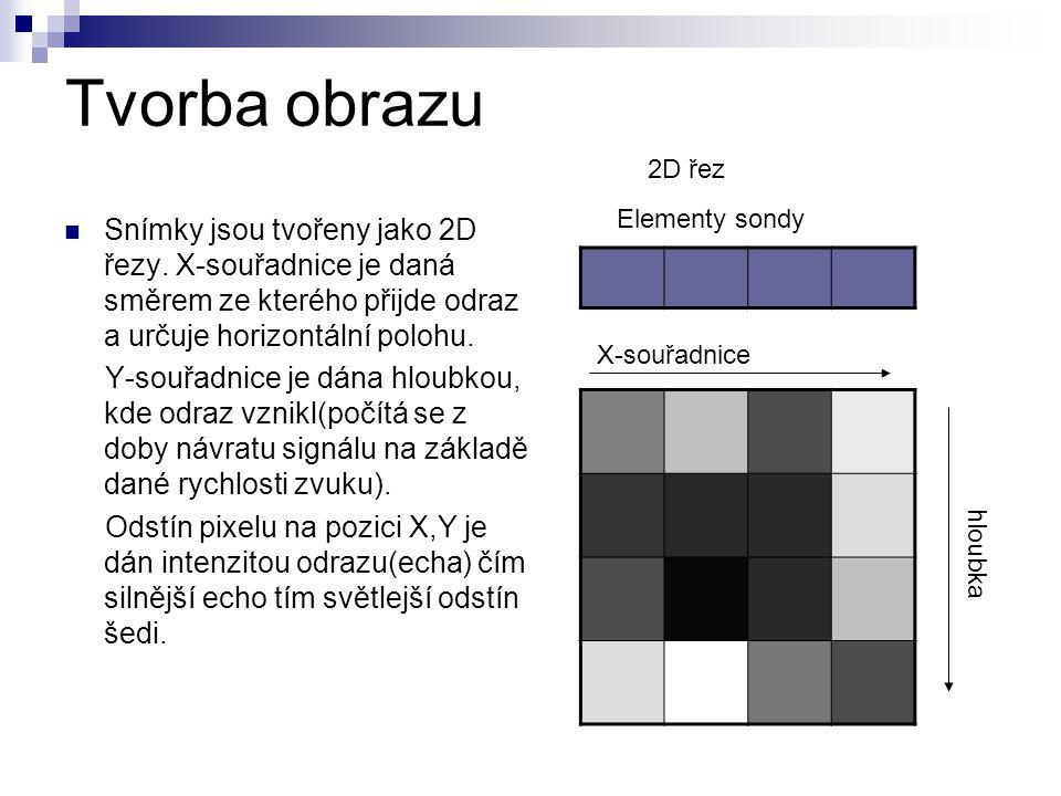 Tvorba obrazu Snímky jsou tvořeny jako 2D řezy. X-souřadnice je daná směrem ze kterého přijde odraz a určuje horizontální polohu. Y-souřadnice je dána