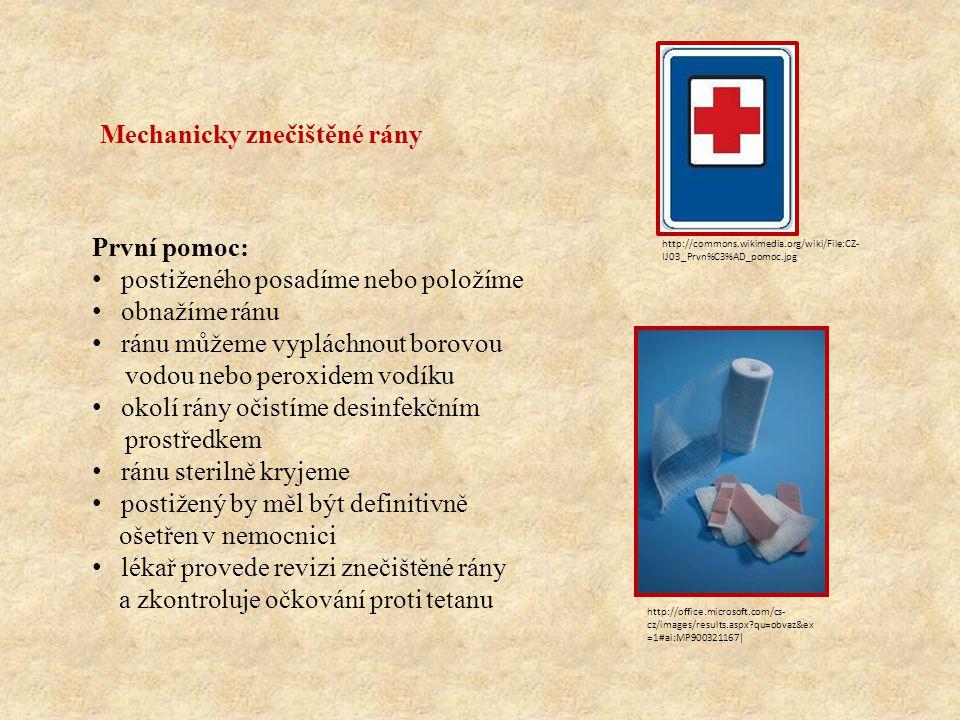 Mechanicky znečištěné rány První pomoc: postiženého posadíme nebo položíme obnažíme ránu ránu můžeme vypláchnout borovou vodou nebo peroxidem vodíku o
