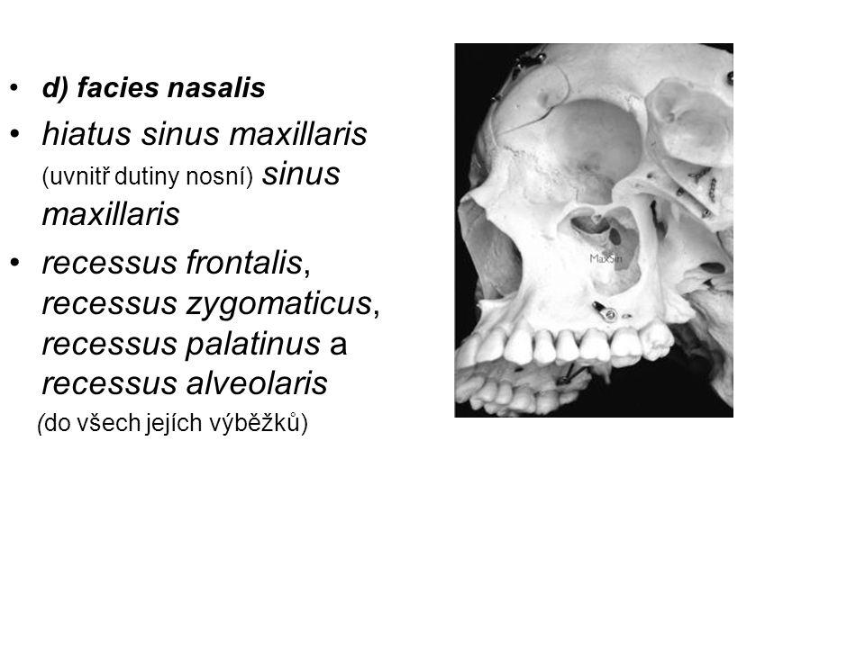 d) facies nasalis hiatus sinus maxillaris (uvnitř dutiny nosní) sinus maxillaris recessus frontalis, recessus zygomaticus, recessus palatinus a recess