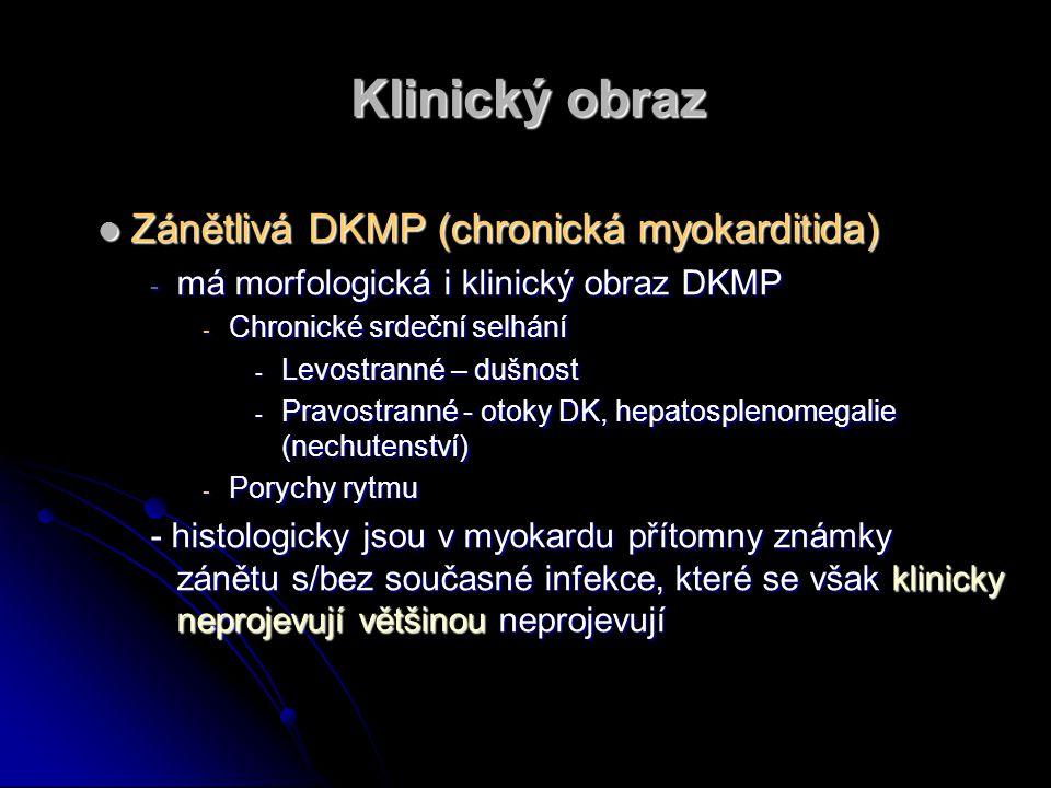 Klinický obraz Zánětlivá DKMP (chronická myokarditida) Zánětlivá DKMP (chronická myokarditida) - má morfologická i klinický obraz DKMP - Chronické srd