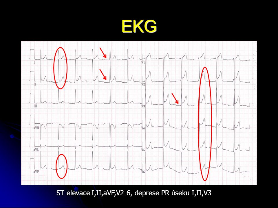 EKG ST elevace I,II,aVF,V2-6, deprese PR úseku I,II,V3