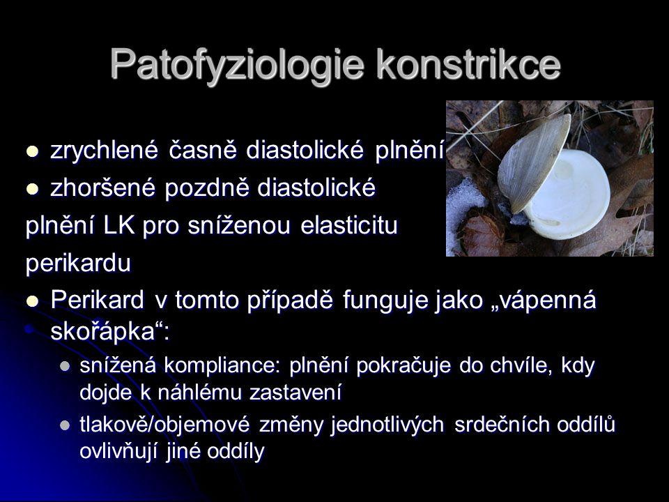 Patofyziologie konstrikce zrychlené časně diastolické plnění zrychlené časně diastolické plnění zhoršené pozdně diastolické zhoršené pozdně diastolick